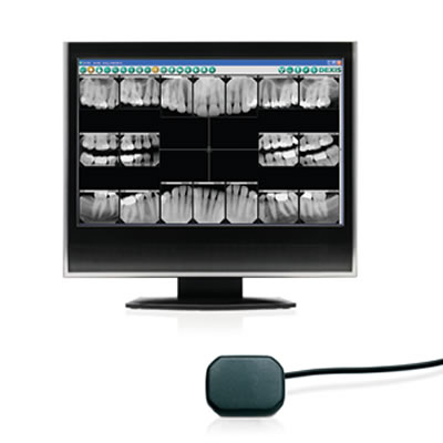 Dental Digital X Rays