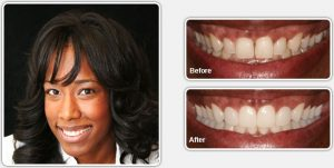 Before and After Cosmetic Dental Services