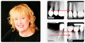 Dental Implant MORGAN HILL, CA