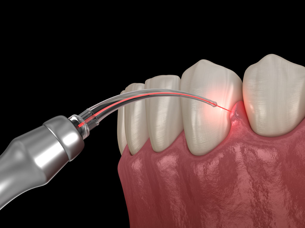 What-Procedures-Can-I-Use-Laser-Dentistry-For--scaled