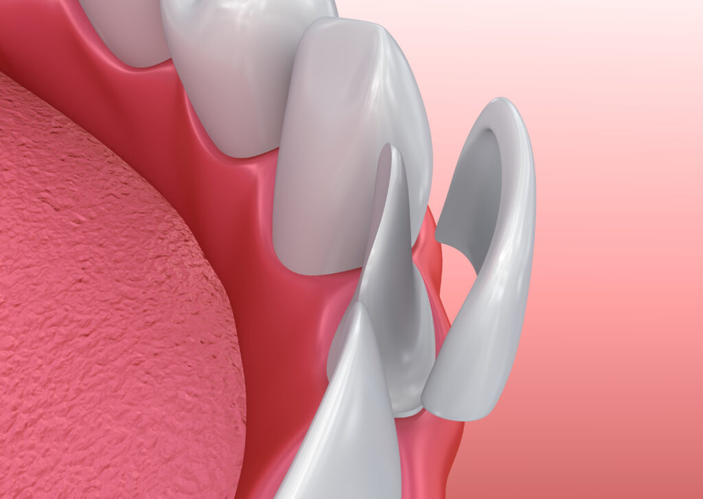How-Can-Porcelain-Veneers-Enhance-My-Smile-scaled