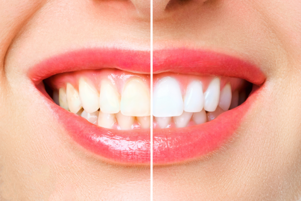 How Zoom!™ Whitening Can Transform Your Smile